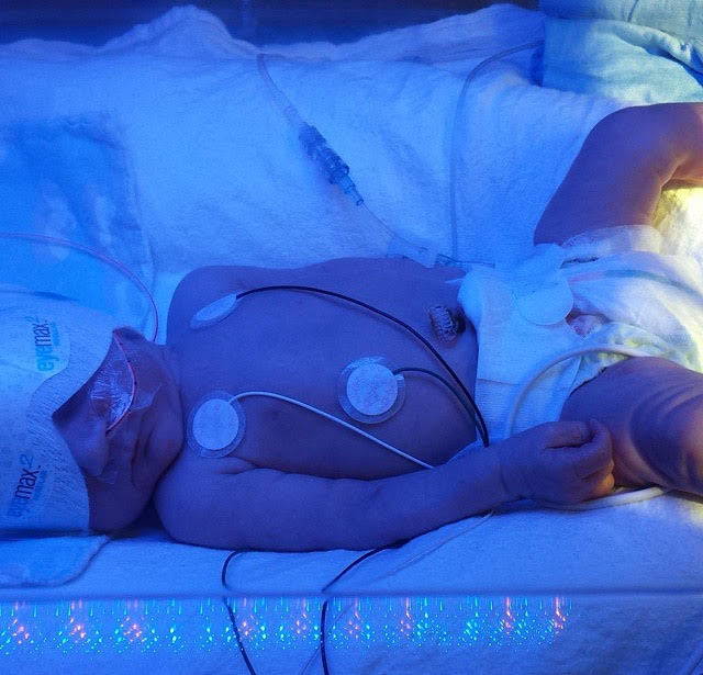 32 weeks preemie